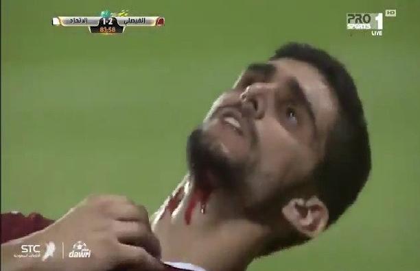 بالفيديو: إصابة مروعة في الدوري السعودي