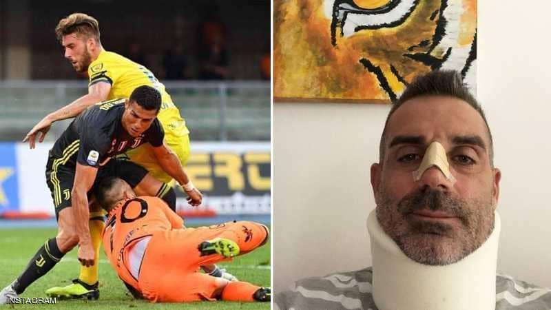 """حارس كييفو يوجه الشكر لـ""""رونالدو."""".. بعد أن كسر أنفه!"""