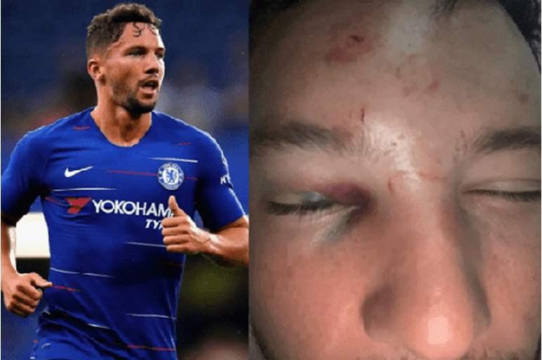إصابات بالغة للاعب كرة قدم شهير بعد تحرشه بصديقة زميله